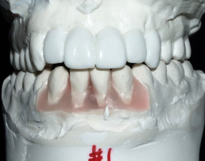 How can dental implants help you?