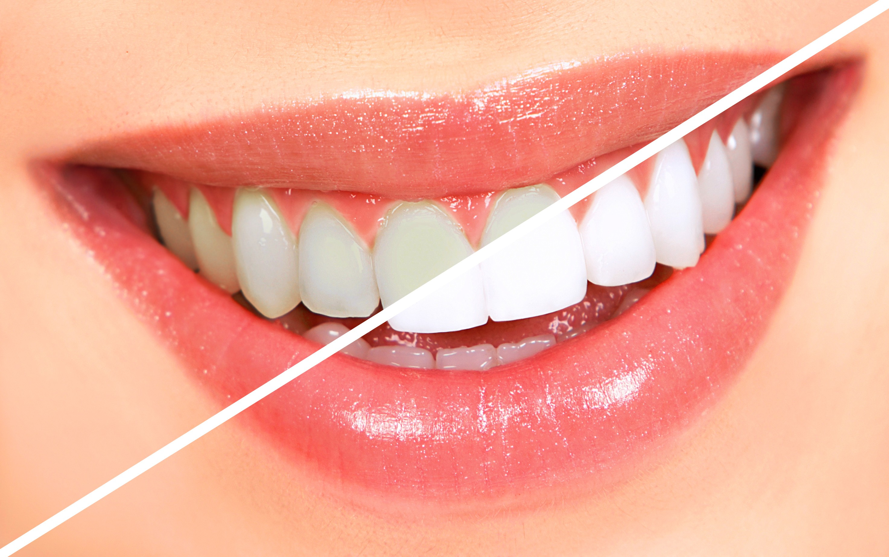 Whitened Teeth Will Only Sparkle for a Limited Time