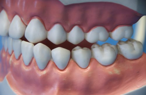 4 FAQs About Cavities