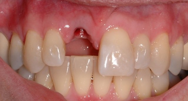 what to do about a missing incisor tooth